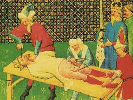 An ancient image of castration as punishment