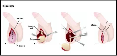 Orchiectomy, a.k.a. removal of the testacles